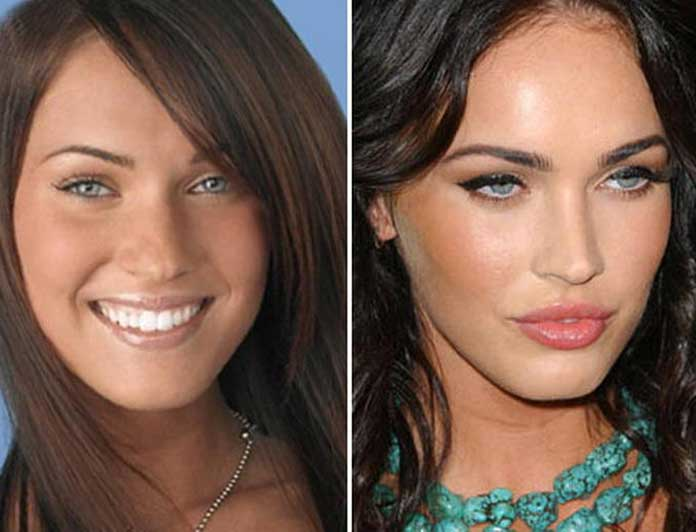Megan-Fox-nose-job