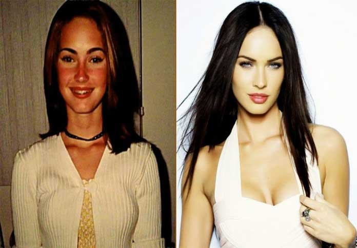 Megan-Fox-before-and-after-plastic-surgery
