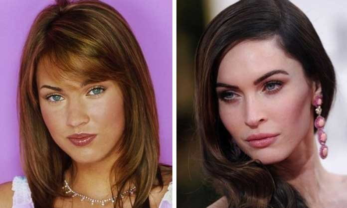 Megan Fox cheek fillers