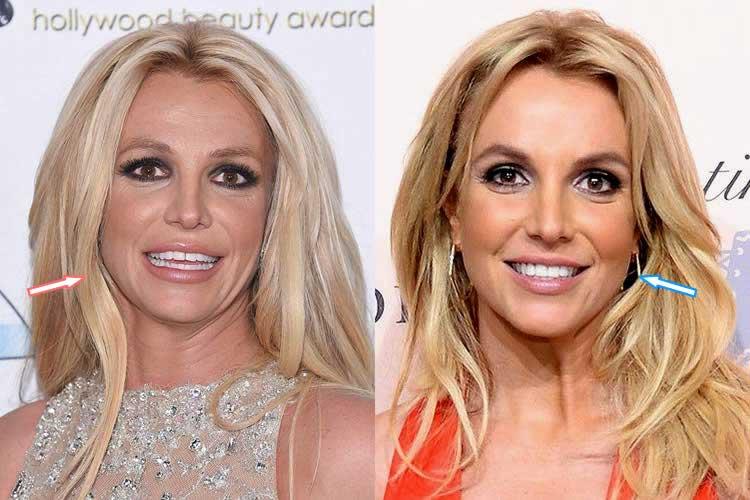 Britney Spears plastic surgeries