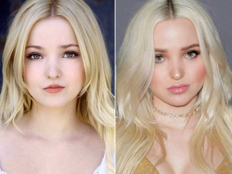 2 Dove-Cameron-Before-and-After-Plastic-Surgery
