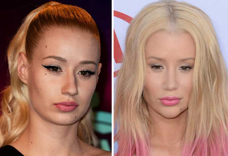 Iggy Azalea Plastic Surgery