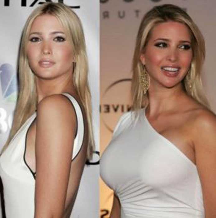 Ivanka Trump boob job