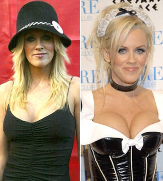 Jenny McCarthy's breast augmentation