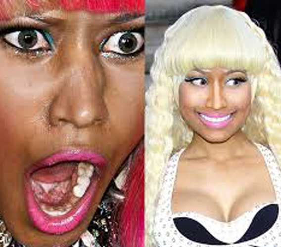 Nicki Minaj Skin Lightening