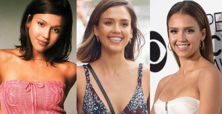 jessica-alba-plastic-surgery-before-and-after-photos