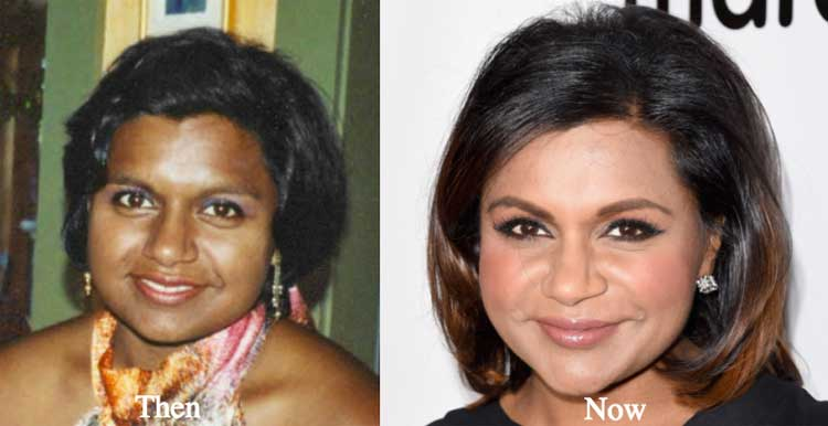 mindy-kaling-before-after-surgery