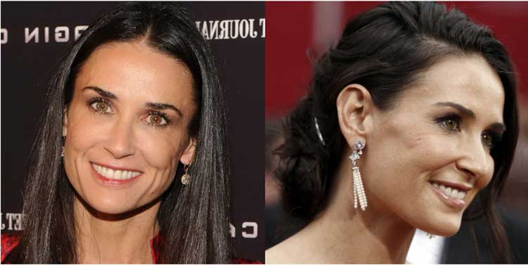 Demi-Moore-Plastic-surgery-before