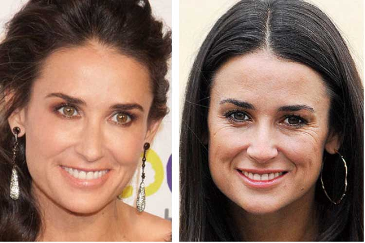 Demi Moore plastic surgery before