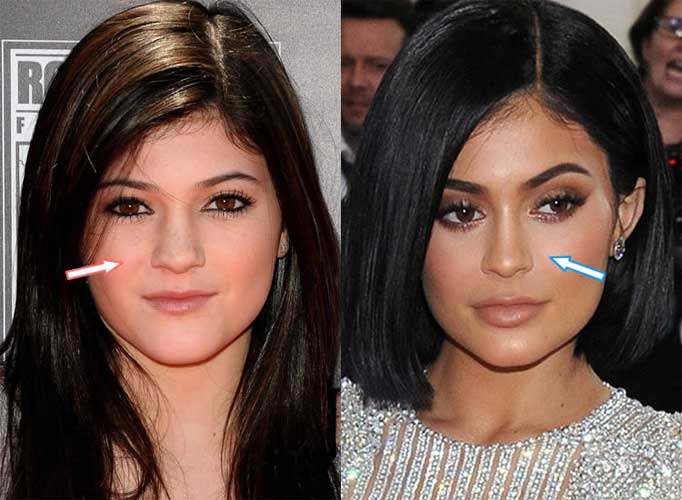Kylie Jenner Before Plastic Surgery