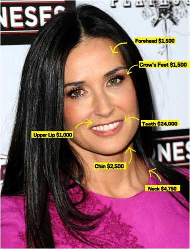 The Outcomes of Demi Moore Plastic Surgery Before and After