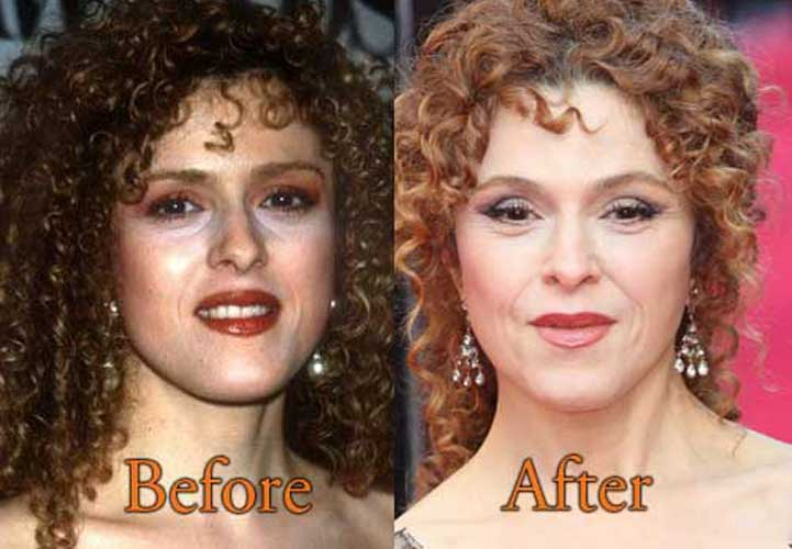 Bernadette Peters Plastic Surgery