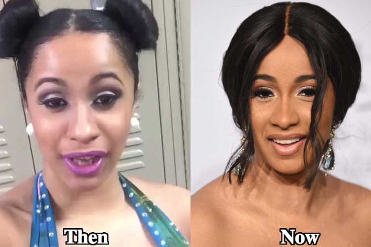 Cardi b teeth before and after