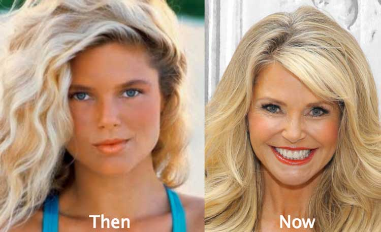 Christie Brinkley Plastic Surgery