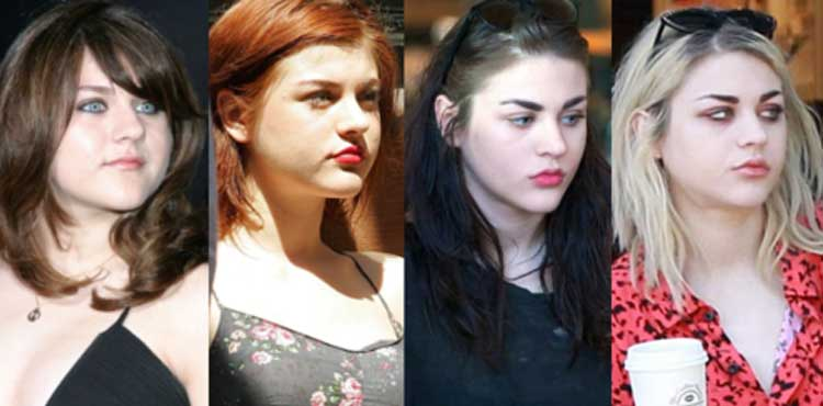 Frances Bean Cobain Plastic Surgery Chin Implants Breast