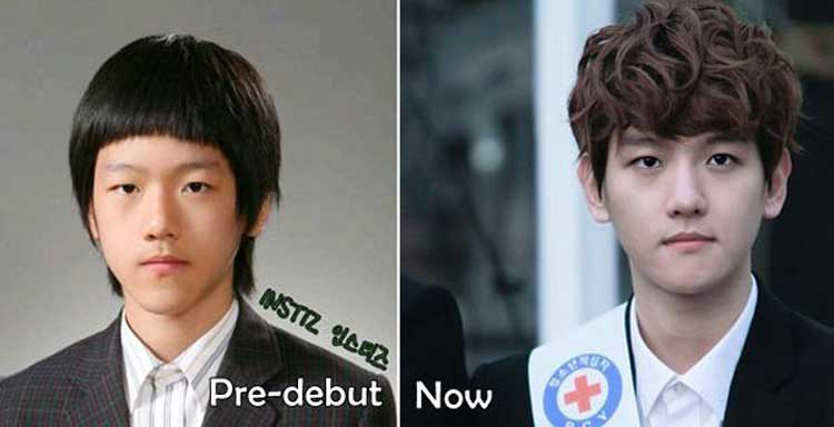 Baekhyun Plastic Surgery