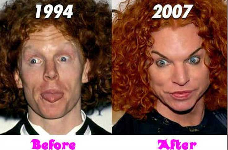 Carrot Top Plastic Surgery