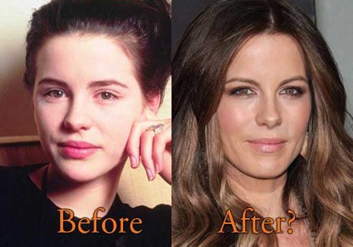 Kate Beckinsale Plastic Surgery