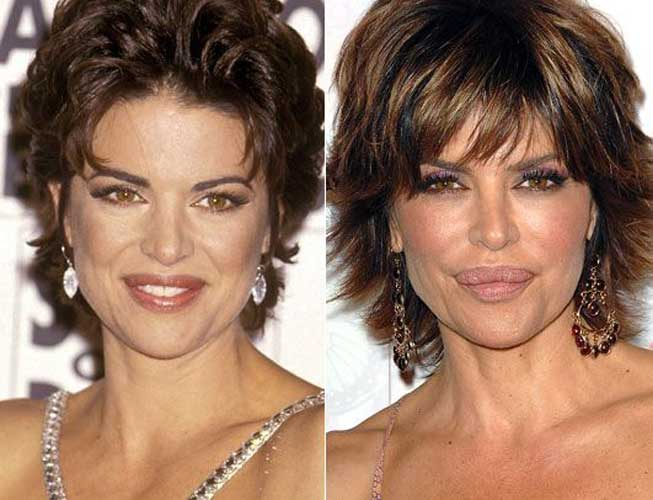 lisa rinna plastic surgery botox lip fillers photos after and before