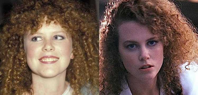 Nicole Kidman Plastic Surgery