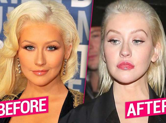 Christina Aguilera Plastic Surgery Boob Job Nose Job