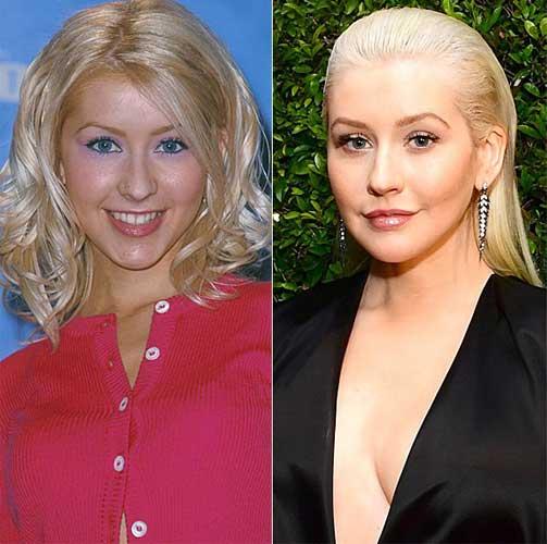 Christina Aguilera plastic surgery