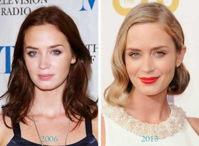 Emily Blunt plastic surgery