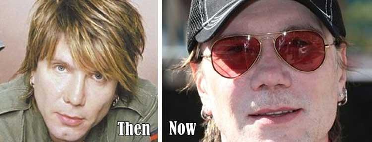 John Rzeznik plastic surgery