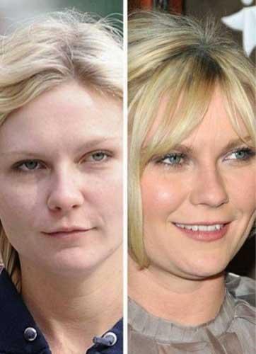 Kirsten Dunst Plastic Surgery