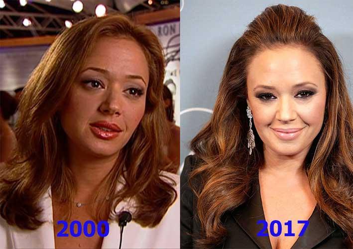 Leah Remini Botox