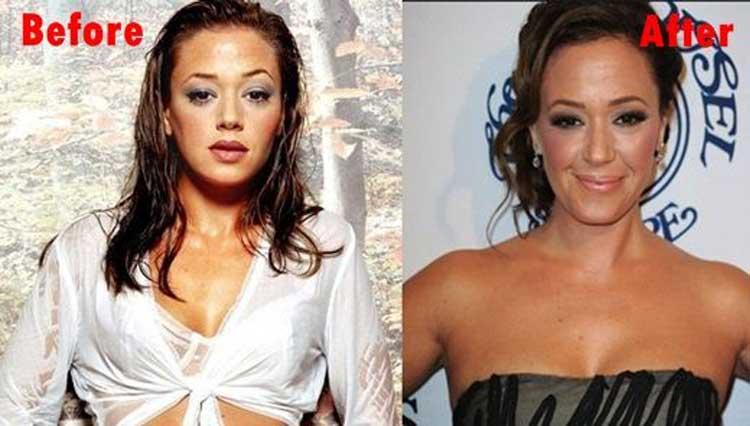 Leah Remini plastic surgery