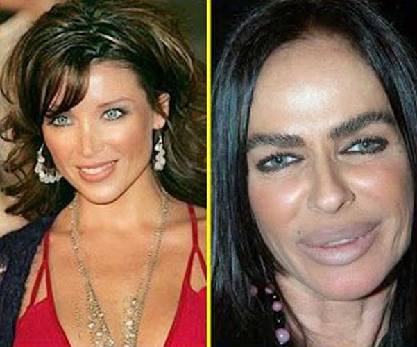 Michaela Romanini plastic surgery