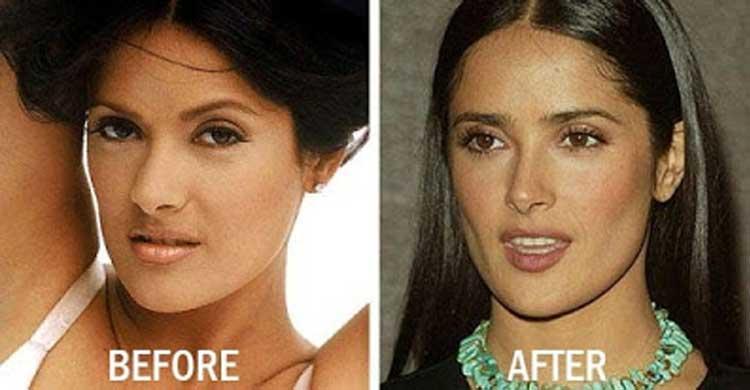 salma-hayek-plastic-surgery