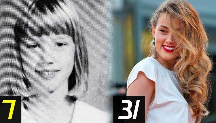 Amber Heard Plastic Surgery