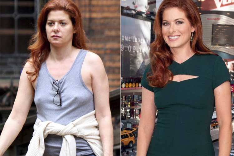 Debra Messing plastic surgery