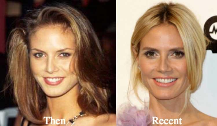 Heidi Klum Plastic Surgery