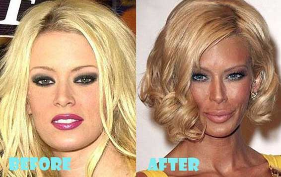 Jenna Jameson plastic surgery