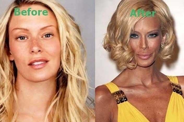 Jenna Jameson plastic surgery