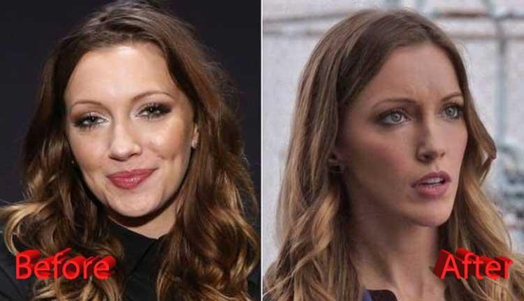 Katie Cassidy plastic surgery