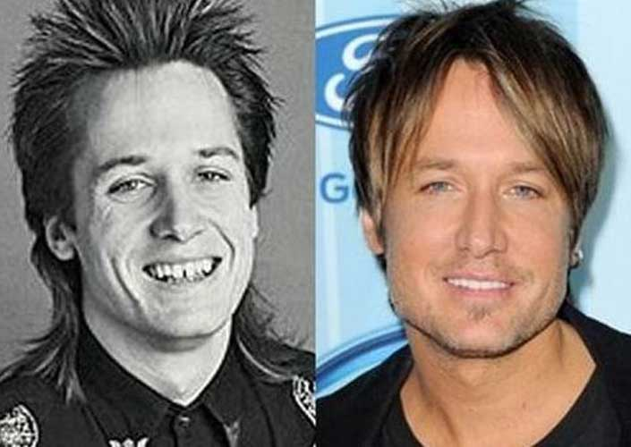 Keith Urban Nose job
