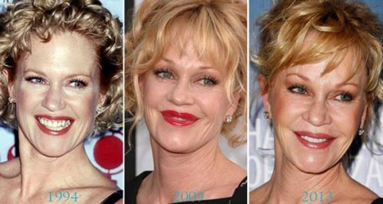 Melanie Griffith plastic surgery