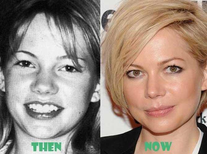 Michelle Williams plastic surgery