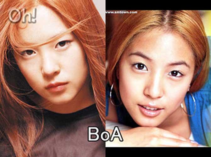 Boa plastic surgery