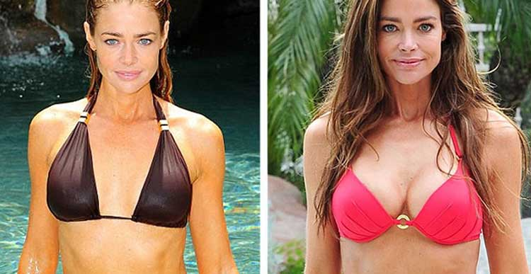 Denise Richards plastic surgery