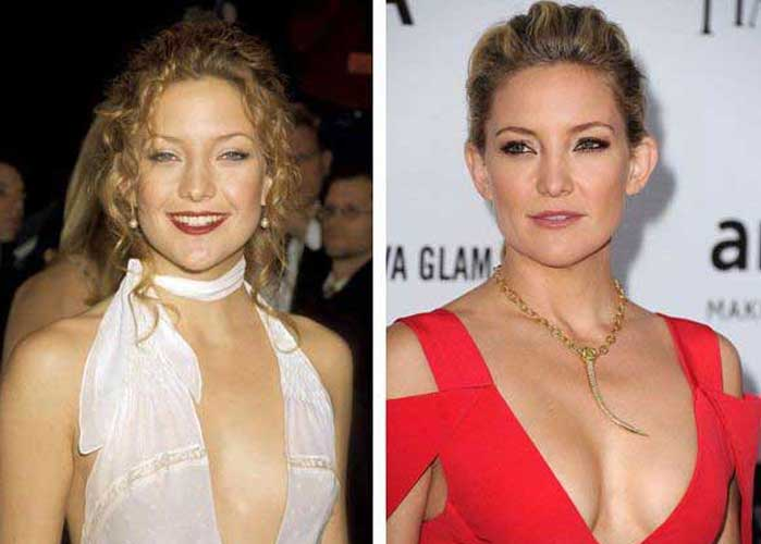 Kate Hudson Plastic Surgery