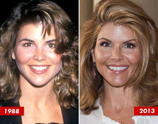 Lori Loughlin plastic surgery