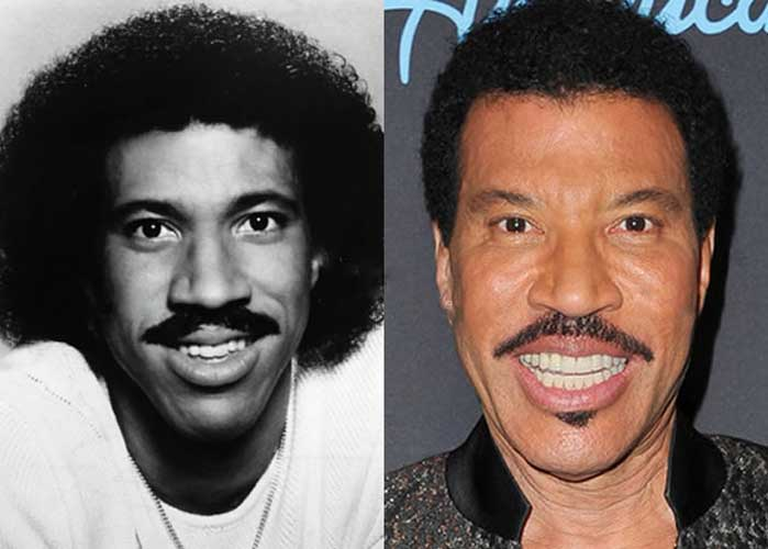 Lionel Richie Plastic Surgery
