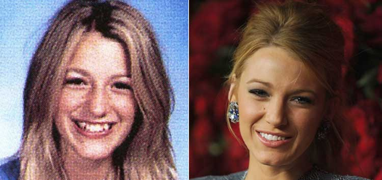 Blake Lively plastic surgery
