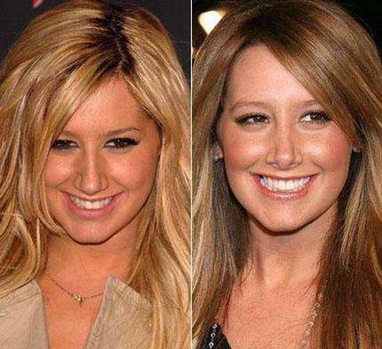Ashley Tisdale plastic surgery