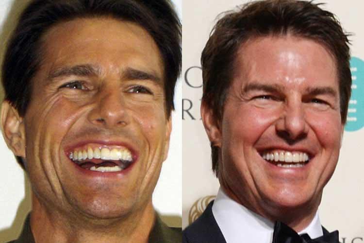 Tom Cruise Plastic Surgery: Teeth, Nose Job, Hair, Facelift